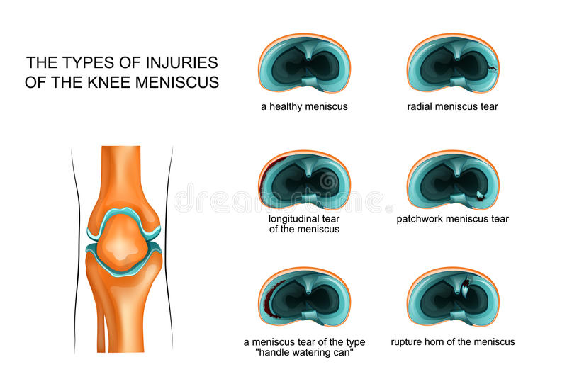 Types of meniscus tear royalty free illustration