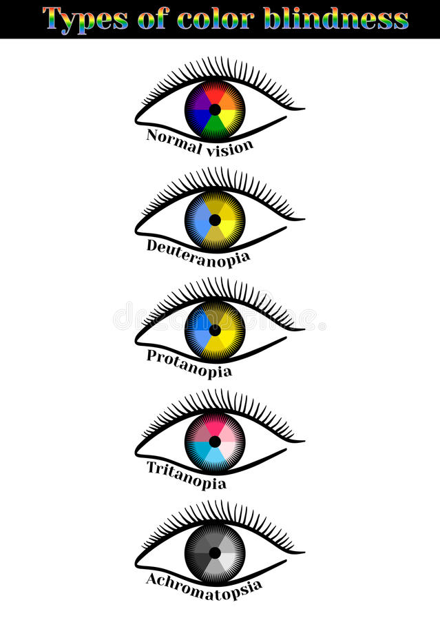 Free Types Of Color Blindness. Royalty Free Stock Photos - 72903358