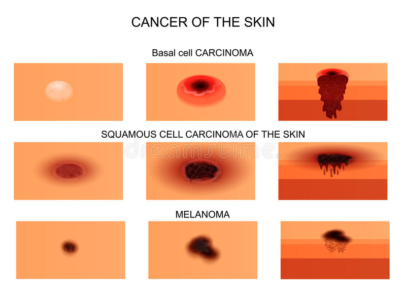 Types of skin cancer. vector illustration