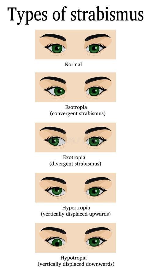 Types of strabismus. Four types of strabismus: esotropia, exotropia, hydrotropia and hypertropia vector illustration