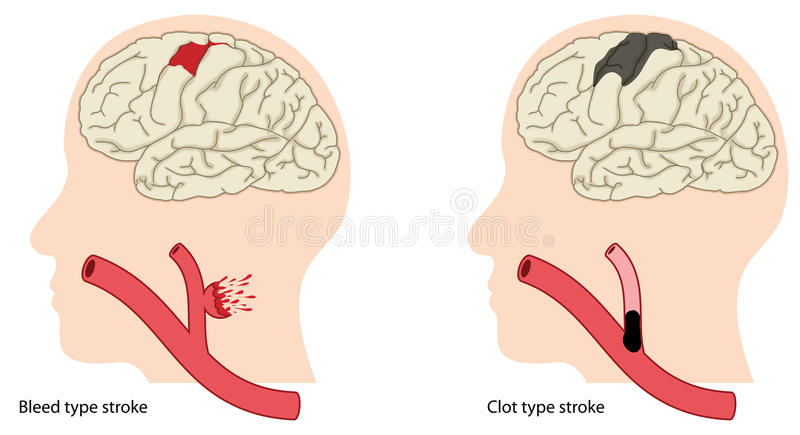 Types of stroke. Two causes of stroke, a bleed type stroke and a clot type stroke. Created in Adobe Illustrator. Contains transparent objects. EPS 10 stock illustration