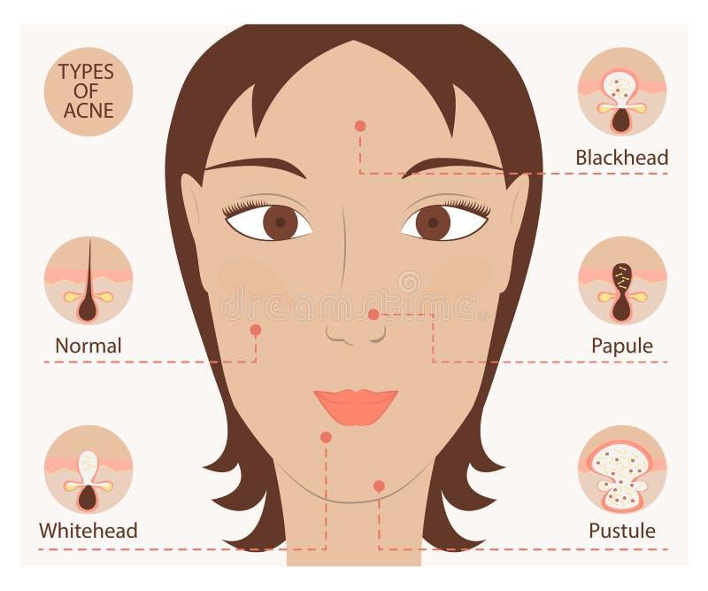 Types van acne en pukkels stock illustratie