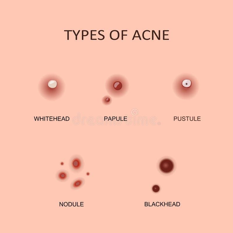 Types van acne en pukkels royalty-vrije illustratie