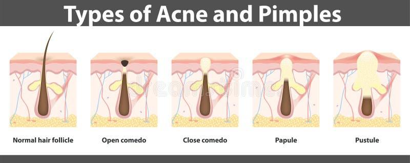 Types van acne, structuur van pukkel, vectorillustratie vector illustratie