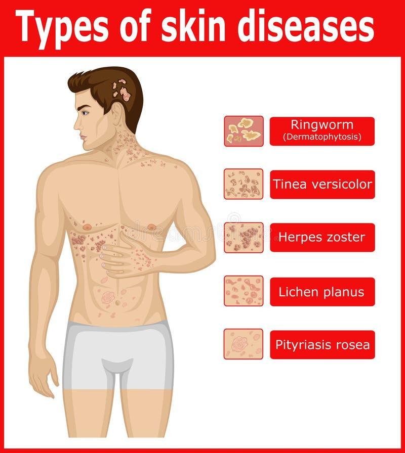 Types van huidziekten royalty-vrije illustratie