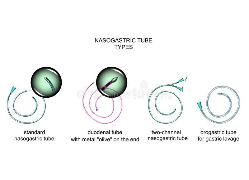 Types van nasogastric buizen royalty-vrije illustratie