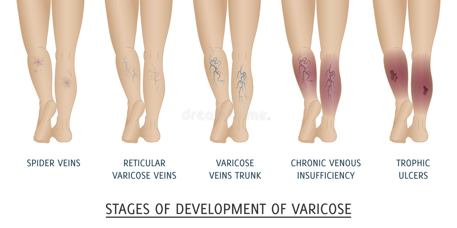 Types of varicose veins in women. royalty free illustration