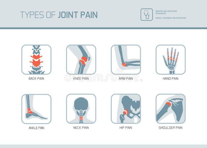 Typy łączny ból ilustracja wektor