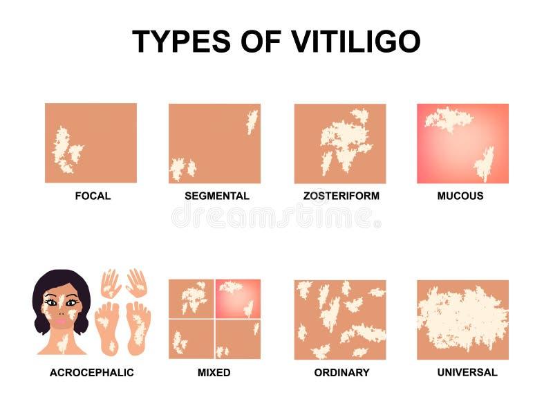 Typy vitiligo ?wiatowy Vitiligo dzie? Infographics Wektorowa ilustracja na odosobnionym tle ilustracja wektor