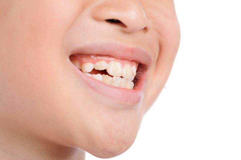 Uśmiechów zęby od dzieciaka obraz royalty free