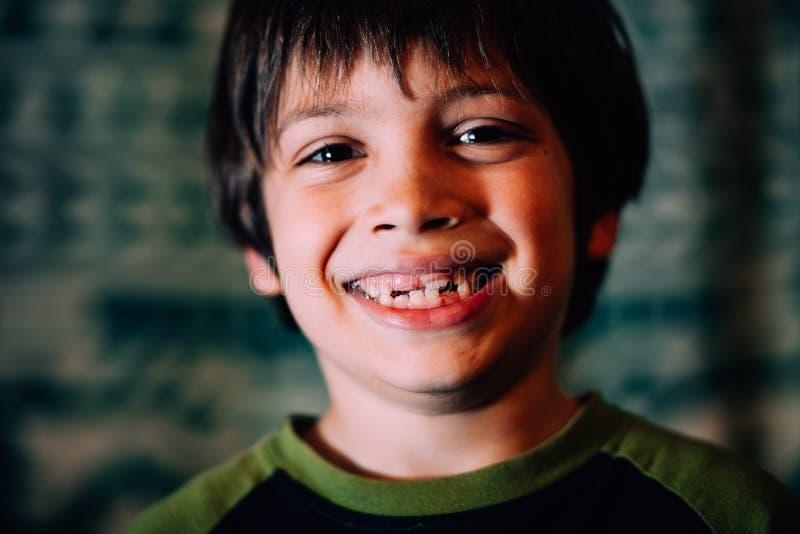 Uśmiechający się chłopiec brakujący zęby obrazy royalty free