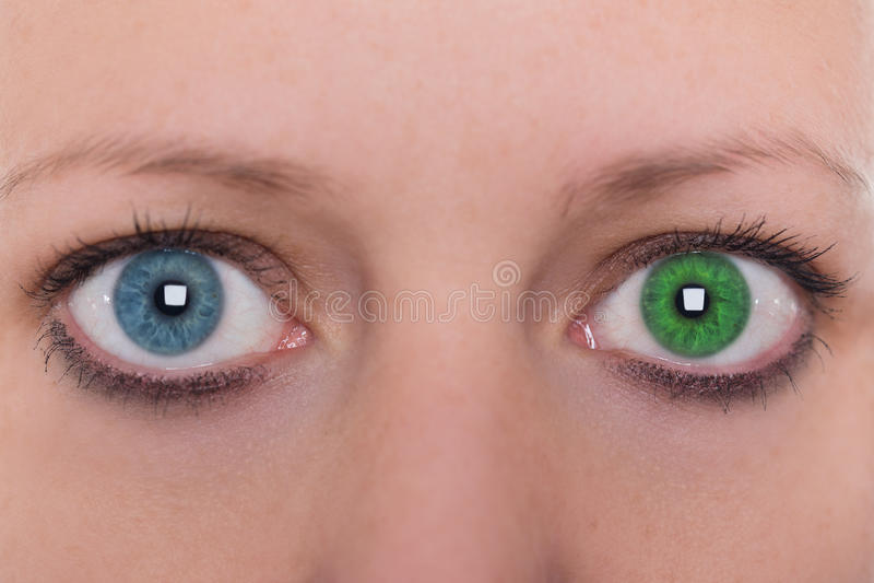 右眼经常酸涩流泪,两只眼睛眼白有血丝