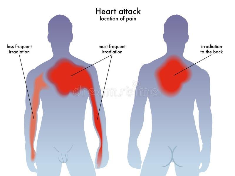 Ubicación Del Dolor Del Ataque Del Corazón Stock de ilustración ...