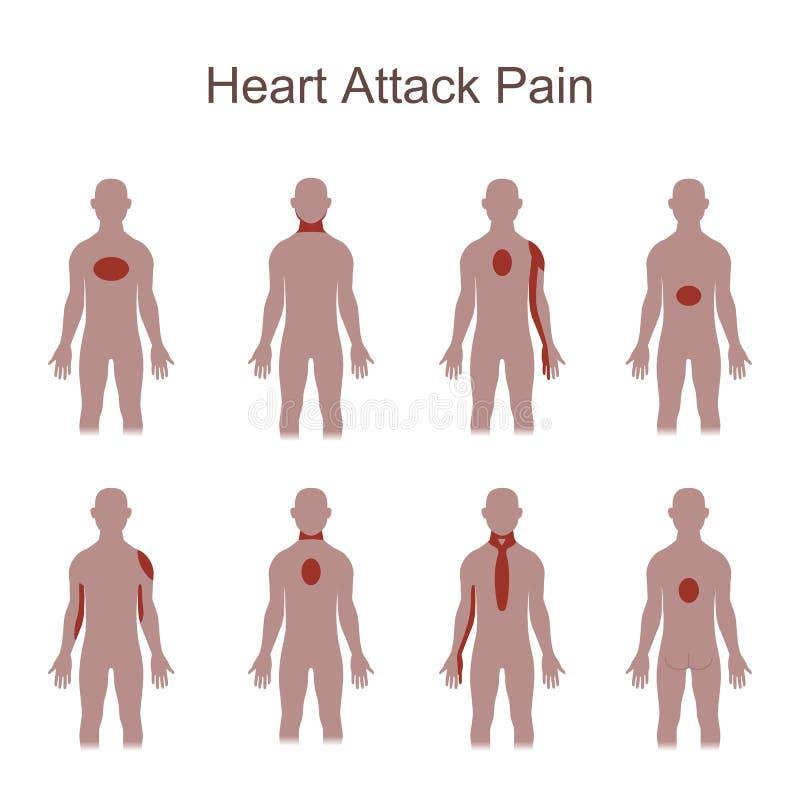Ubicación Del Dolor Del Ataque Del Corazón Ilustración del Vector ...