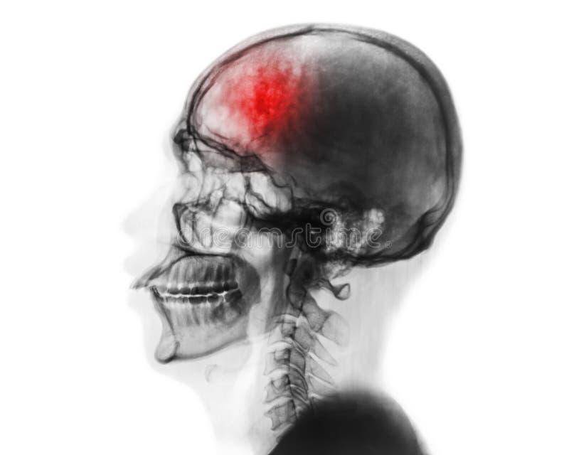 uderzenie cerebrovascular wypadek Ekranowy promieniowanie rentgenowskie ludzka czaszka i karkowy kręgosłup zdjęcia stock