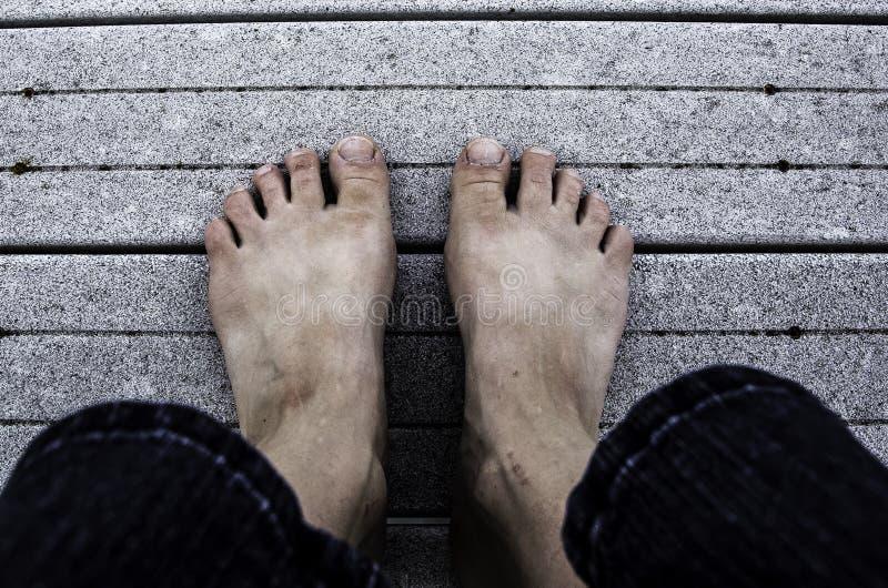 Ugly Feet stock photo