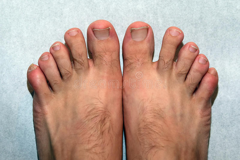 Ugly nails, feets and toes. Untidy feets and nails, uncut nails royalty free stock photography