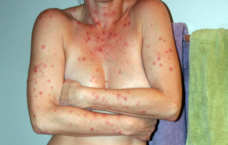 Ugly skin rash. Round circular with deep red centers painfully and itchy allover my body royalty free stock photography