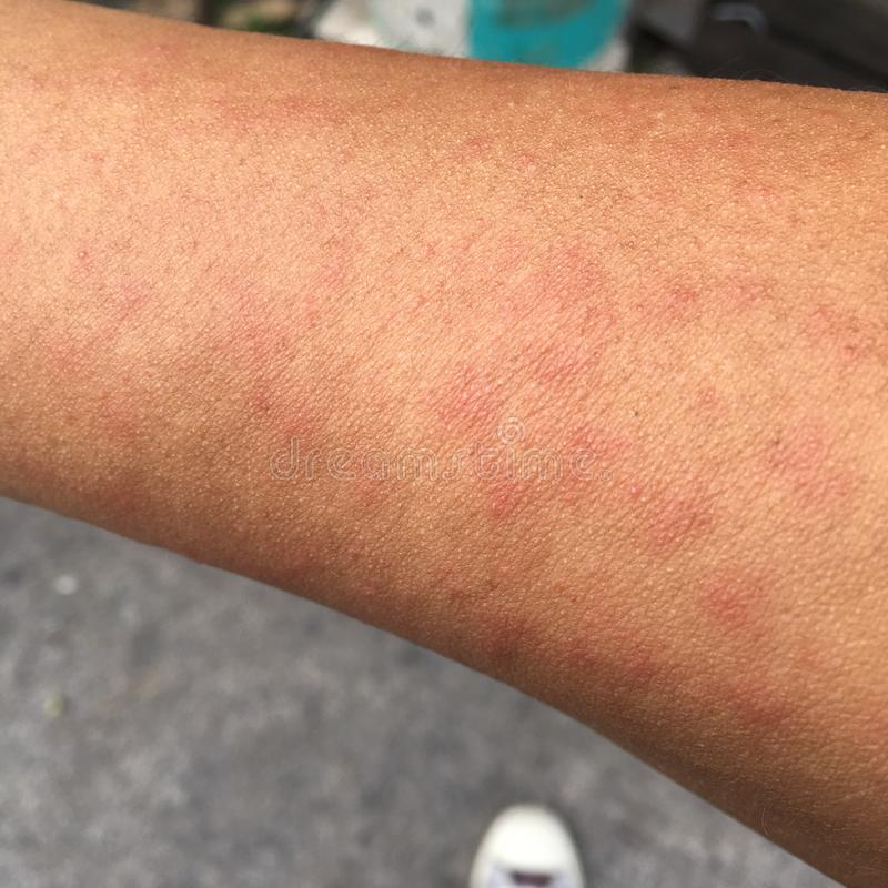 Uitbarsting door allergische huid te zweten, stof en virussen wordt veroorzaakt dat royalty-vrije stock foto