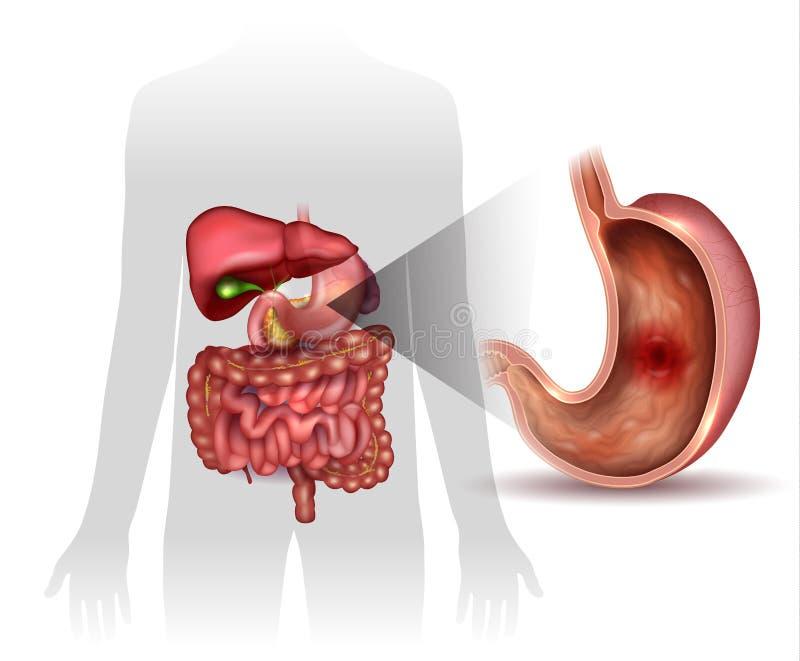 Ulcer royalty free illustration