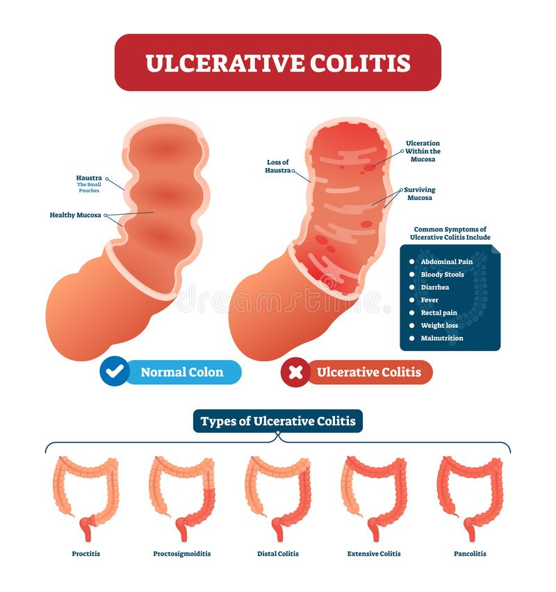 Ulcerative colitis vector illustration. Labeled anatomical infographic stock illustration
