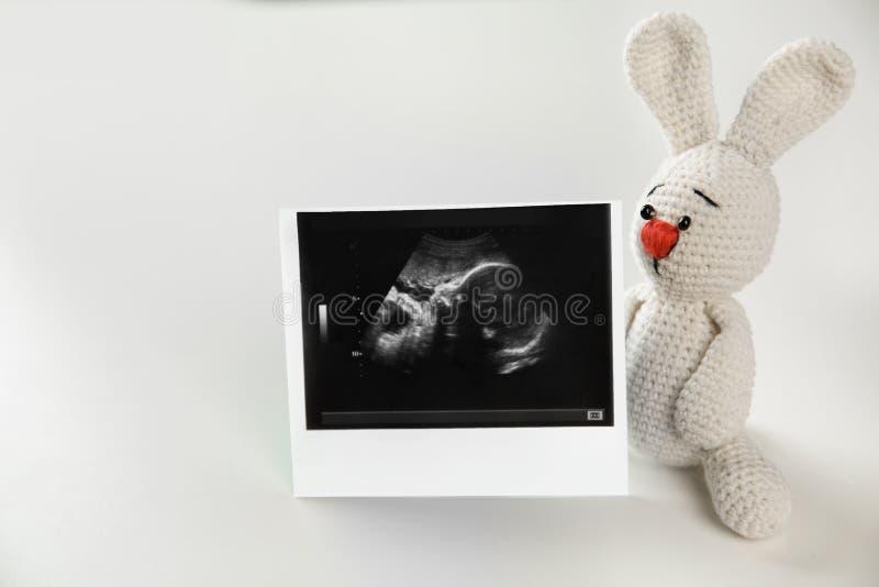 Ultradźwięk fotografia dziecko i zabawka fotografia royalty free