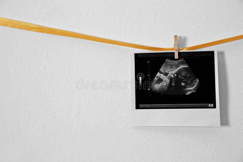 Ultradźwięk fotografii obwieszenie na faborku przeciw białemu tłu zdjęcia stock