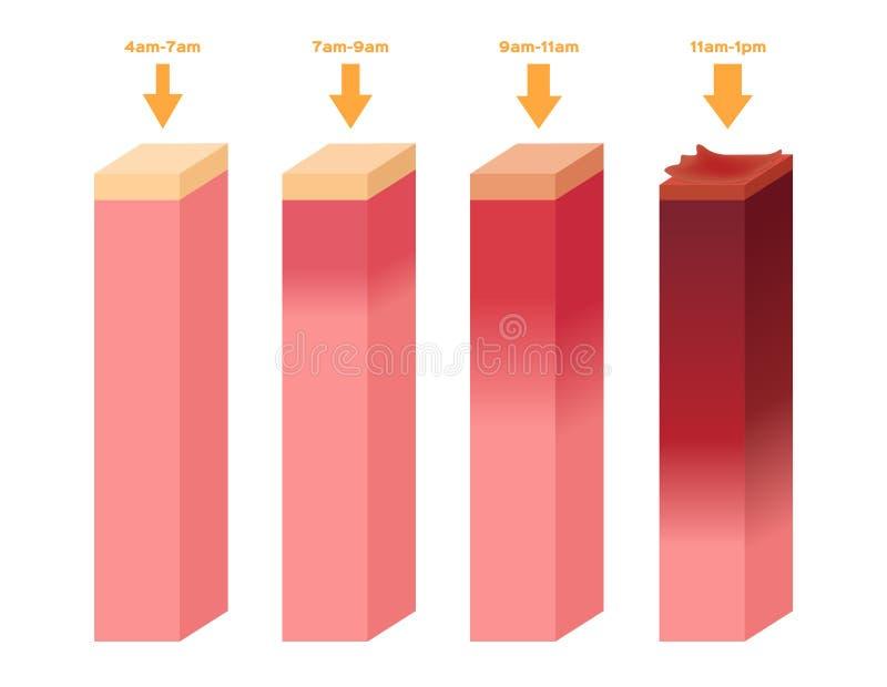Ultrafioletowy wskaźnik Infographic pozafioletowego oparzenie ludzka skóra od 4am - 1 pm royalty ilustracja