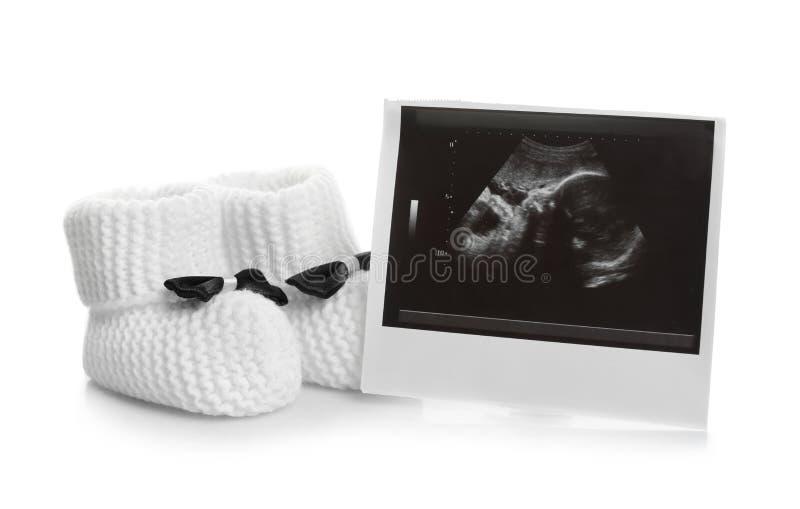 Ultraschallfoto und Babyschuhe auf weißem Hintergrund stockbild