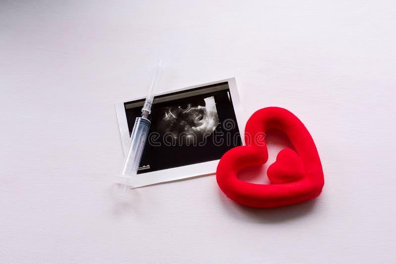 Ultraschallscan des Kindes und das Herz auf einem wei?en Hintergrund lizenzfreies stockbild