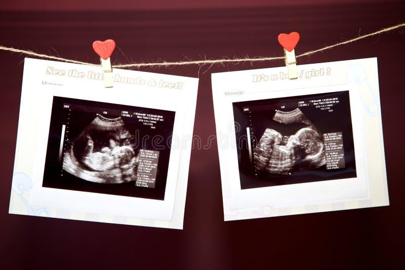 ultrasound royaltyfri bild