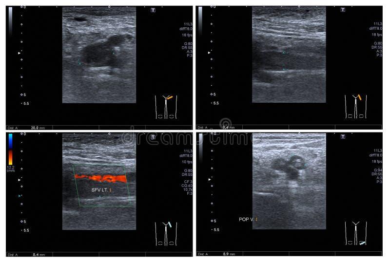 Ultrasound color doppler both leg. Ultrasound color doppler both leg:Hyperechoic thrombus with dilatation of veins, at Lt superficial femoral v. and popliteal v stock photos