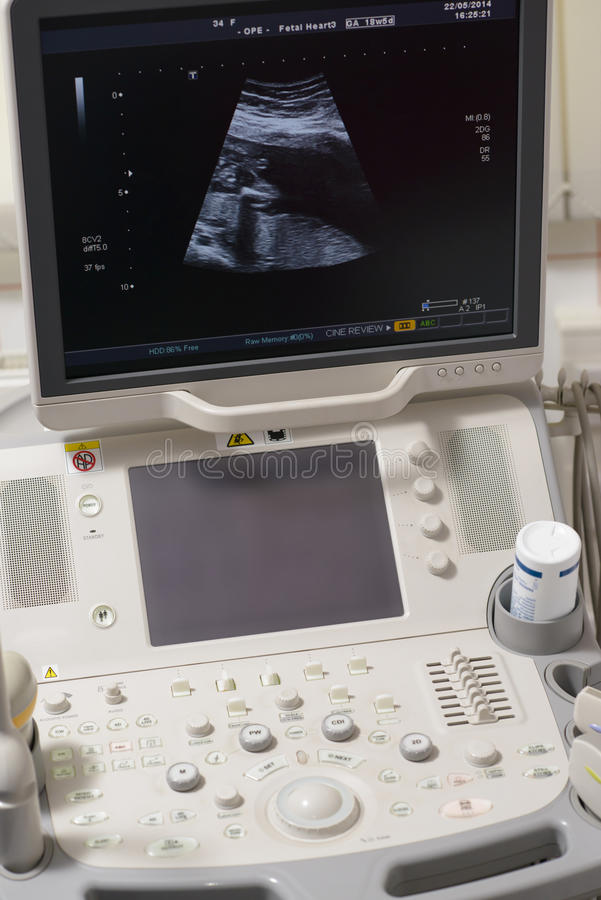 Ultrasound Device. In a hospital royalty free stock images
