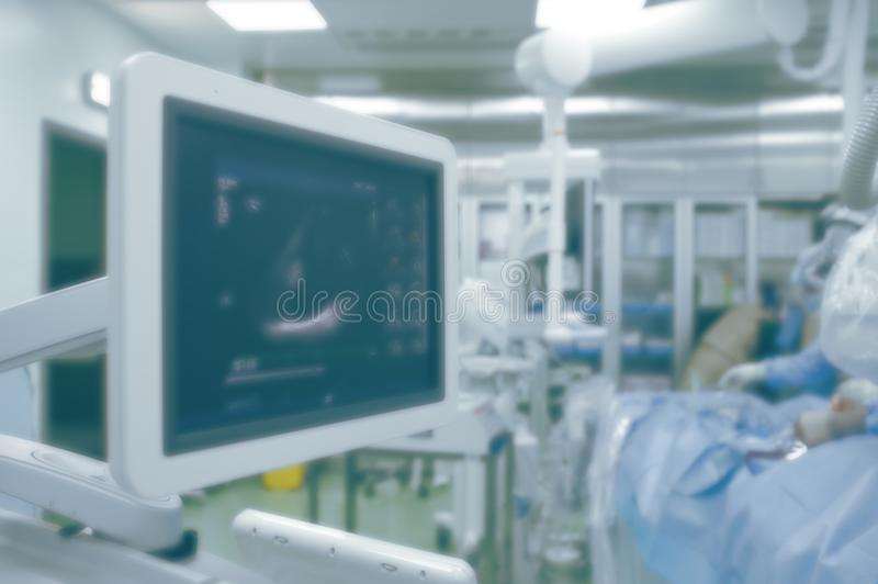 Ultrasound monitoring of heart function in the operating room equipped with advanced technologies, unfocused background.  stock photography