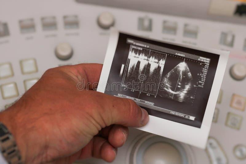 Ultrasound photo - heart royalty free stock photos