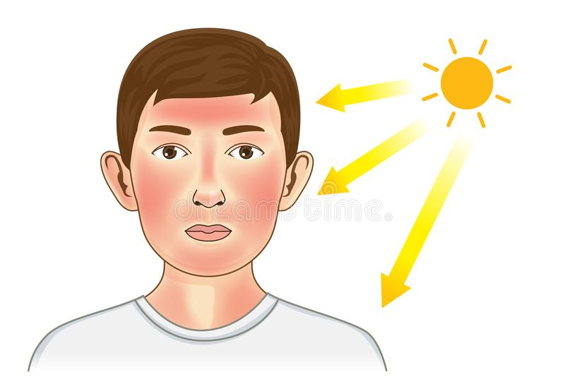 Ultraviolet ray from sun make the redness appear on boy facial and neck skin. Illustration about danger of UV vector illustration