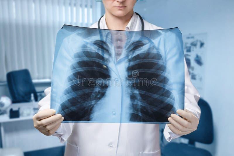 Um doutor está examinando uma imagem dos pulmões para o tratamento e o diagnóstico fotos de stock royalty free