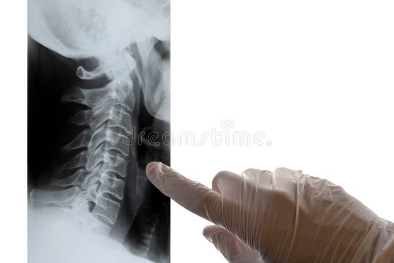 Um doutor nos pontos brancos das luvas um dedo em um raio X da espinha cervical Close-up Conceito em um tema médico, dia de fotos de stock
