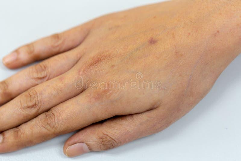 Um exame do tecido, nervos, tendões à mão imagem de stock