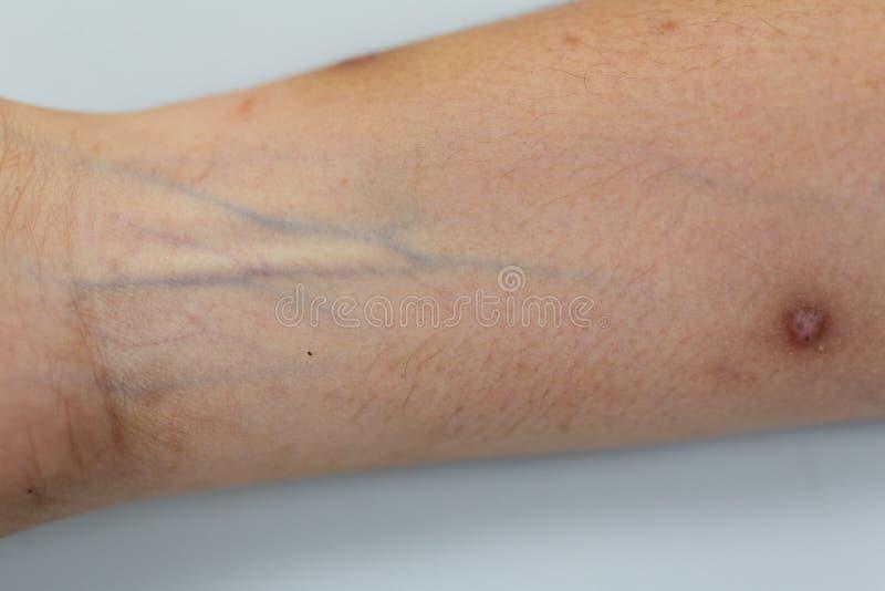 Um exame do tecido, nervos, tendões à mão fotos de stock