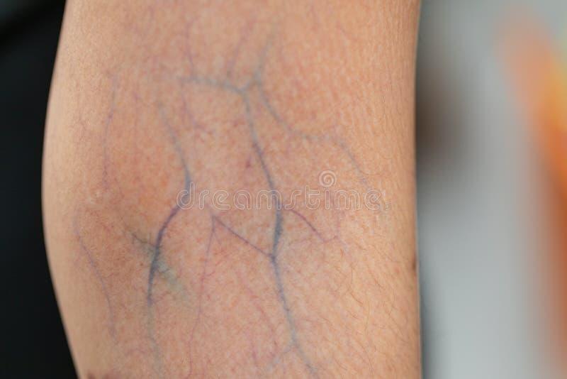 Um exame do tecido, nervos, tendões à mão imagem de stock royalty free
