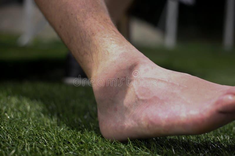 Um ferimento desagradável do pé em um jogador de futebol novo imagens de stock