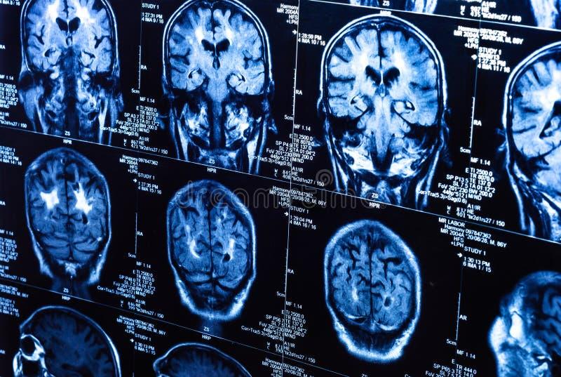 Um grupo de varreduras de CAT do cérebro humano imagem de stock royalty free