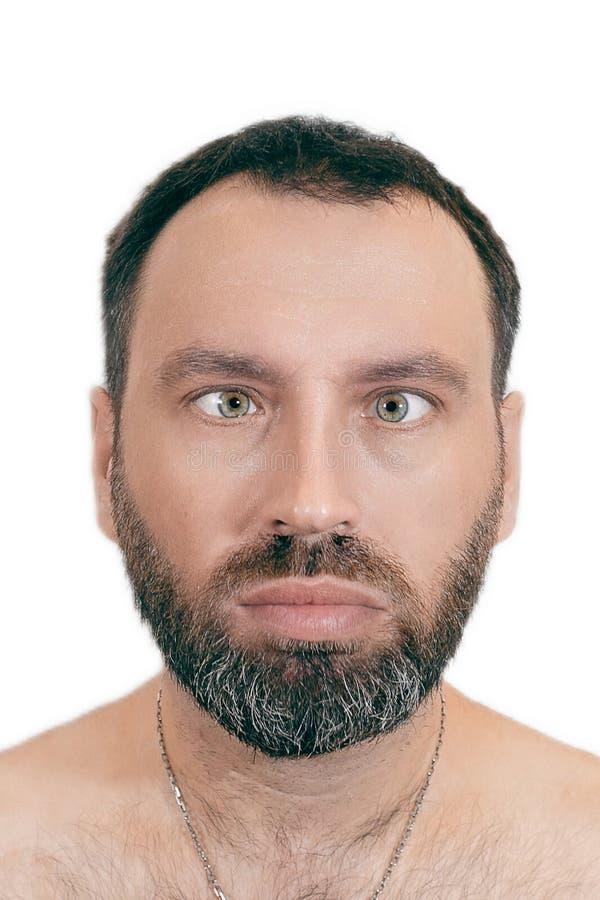 Um homem com estrabismo Ortoótica conceito oftalmológico Doença médica foto de stock
