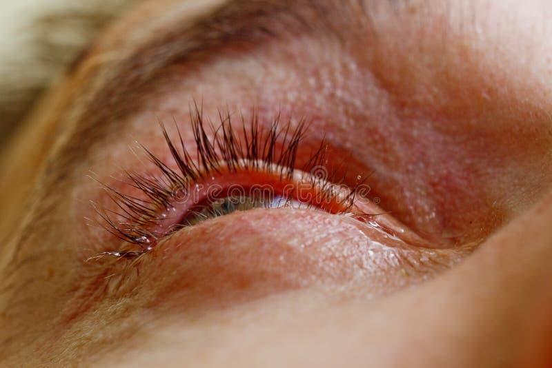 Um homem goteja o olho humano aberto com gotas vermelhas brilhantes das artérias para melhorar perto a visão acima irritação e ve imagem de stock
