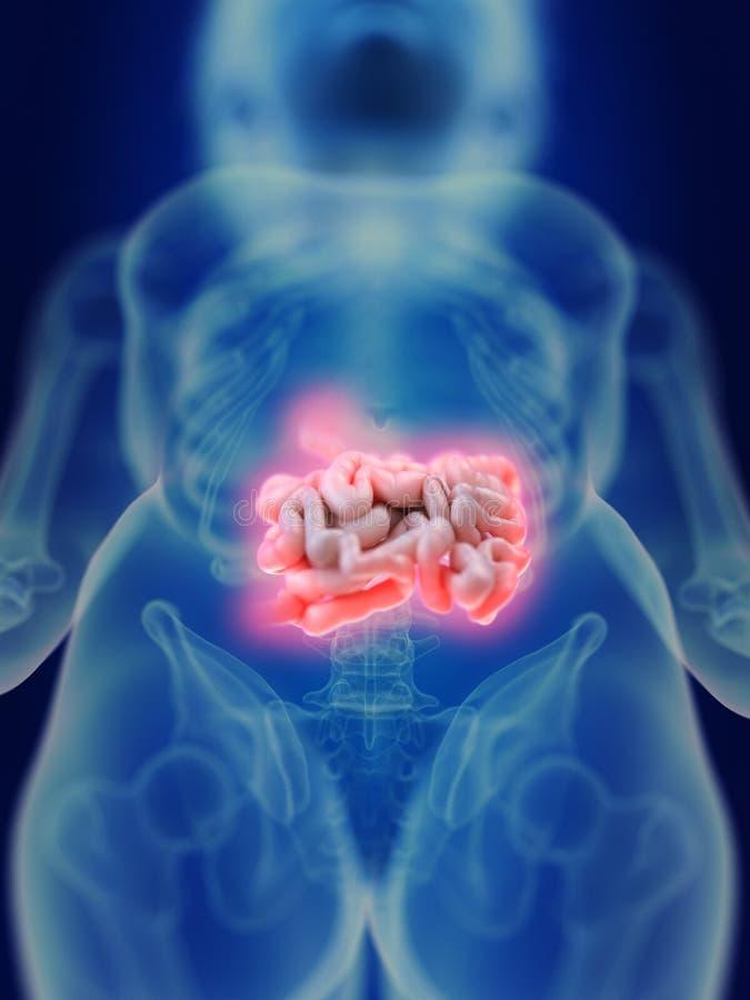 Um intestino inflamado ilustração do vetor