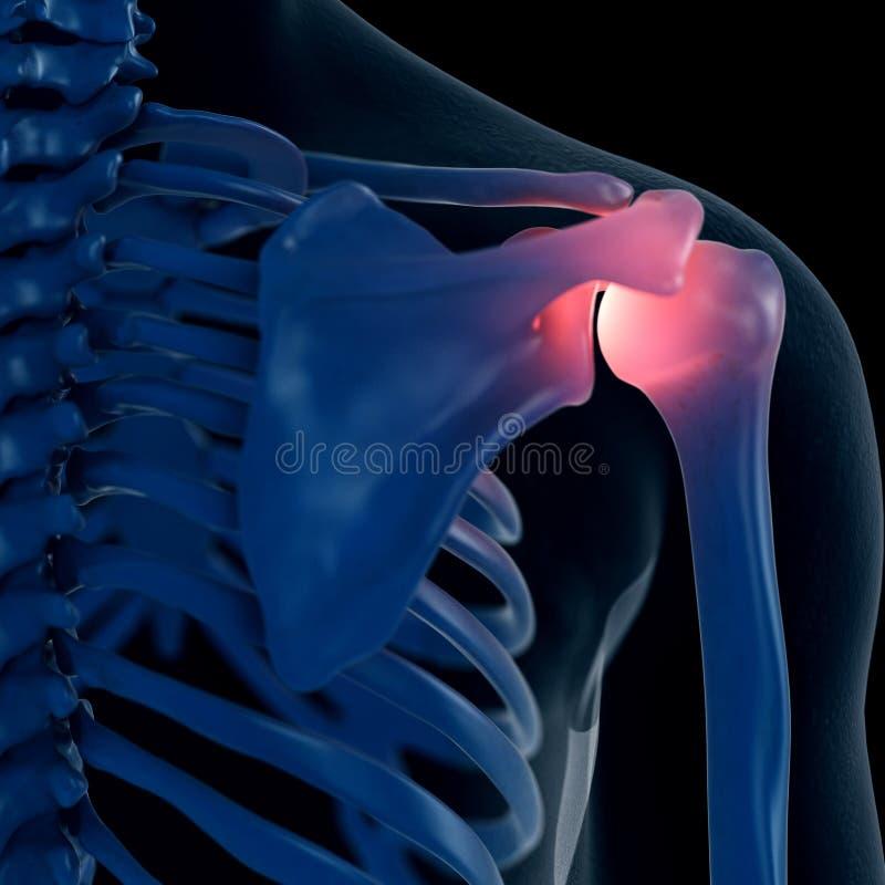 Um ombro doloroso ilustração stock