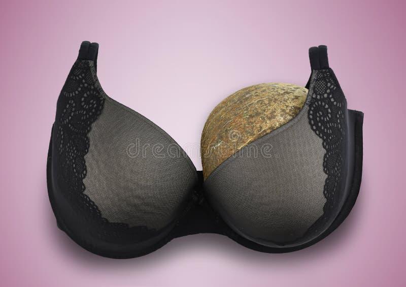 Um sutiã meio vazio do conceito do câncer da mama do peito após a amputação imagem de stock royalty free