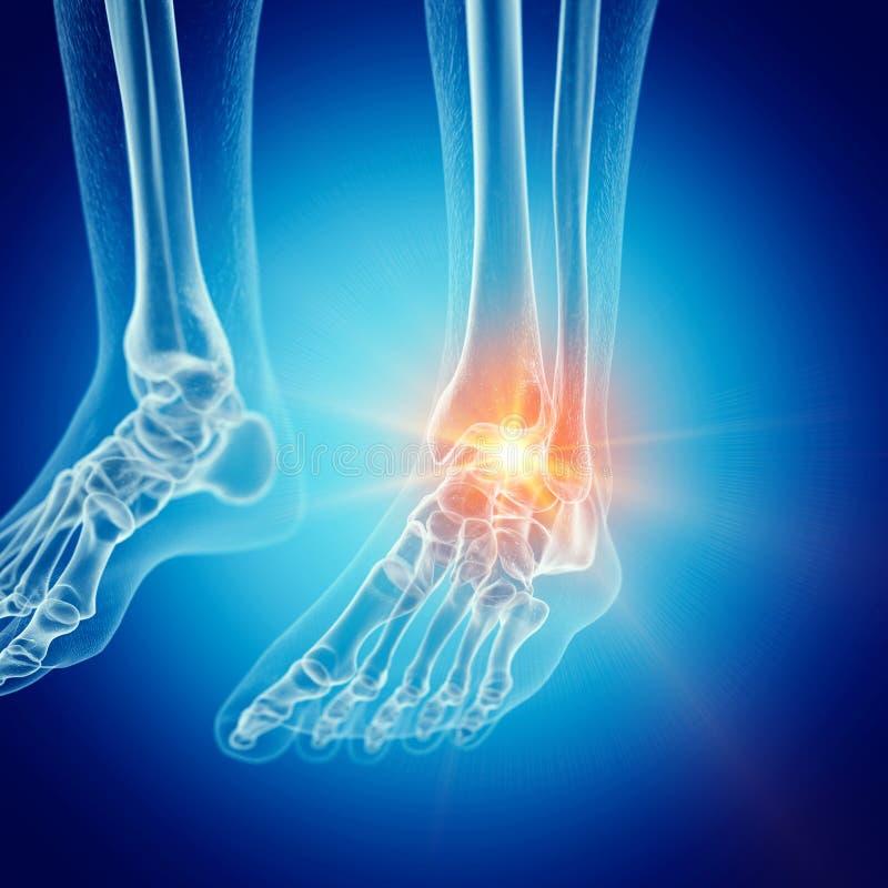 Um tornozelo doloroso ilustração royalty free