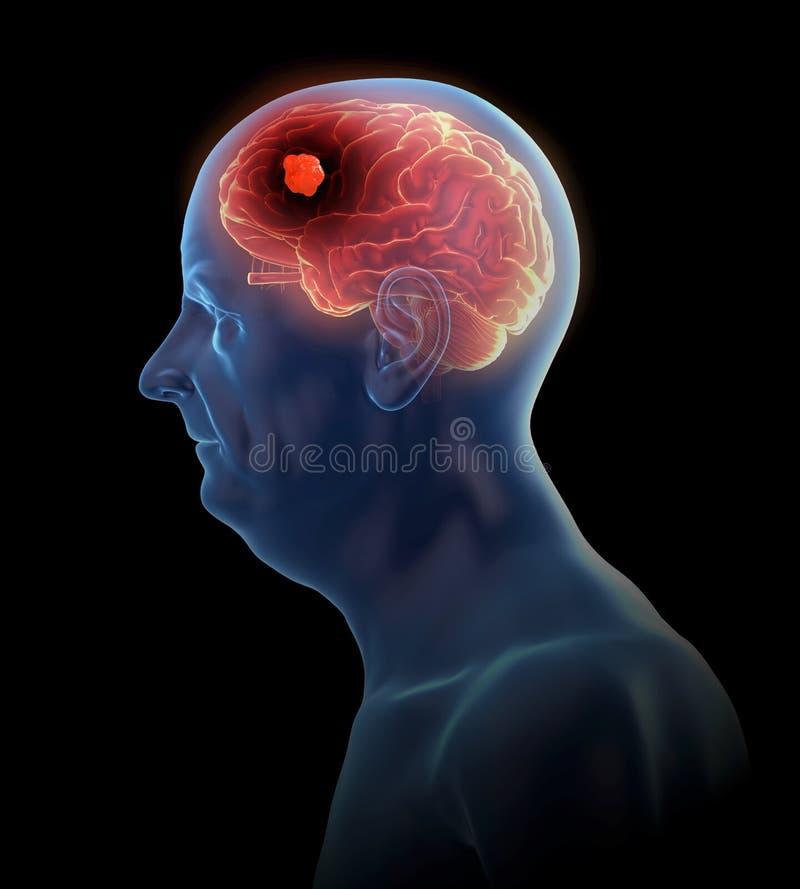 Um tumor cerebral ilustração stock